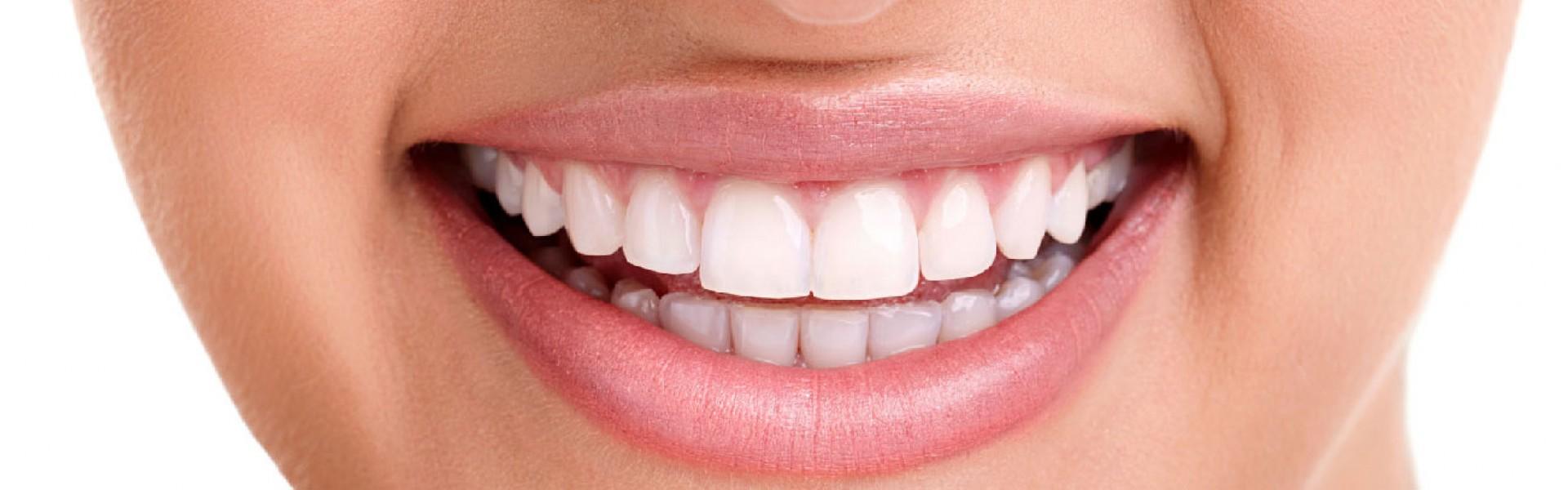 Oral hygiene treatment