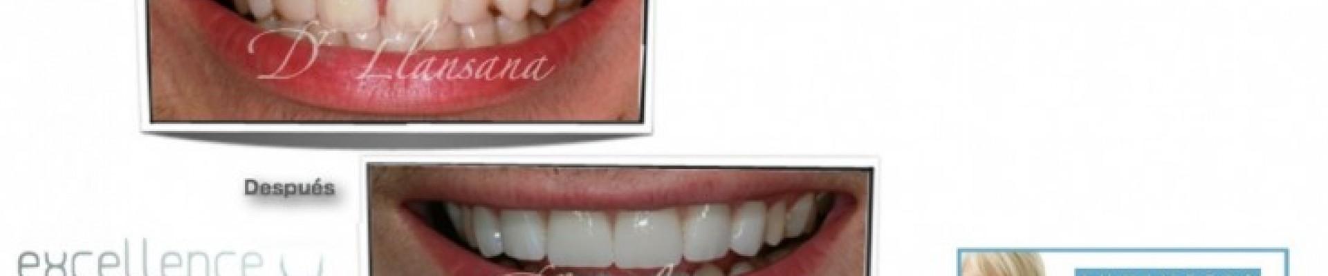 Carillas cerámicas Lumineers en Excellence Dental
