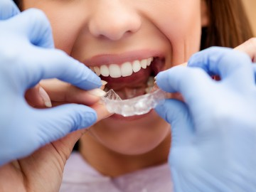 Ambulatory tooth whitening