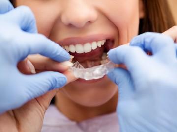Ambulatory tooth whitening