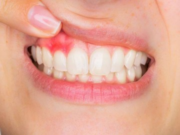 Gingivitis Treatment