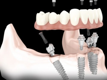 Complete rehabilitation with 4 implants