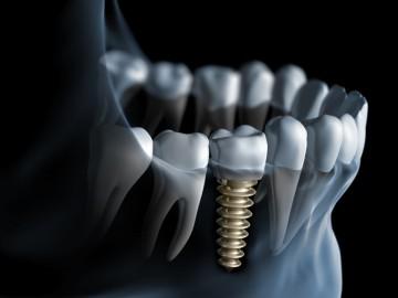 Immediately loaded dental implantes