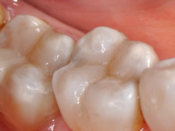 Replacing amalgams with resin fillings