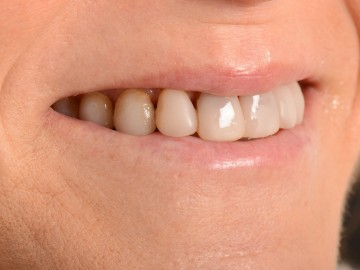 Tetracycline teeth discoloration or dark teeth