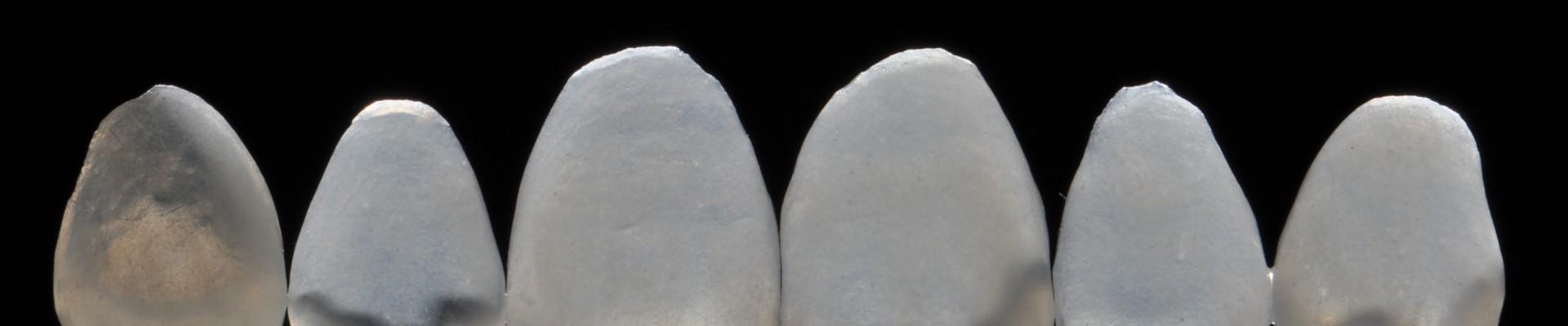 Descubre cómo las carillas dentales pueden mejorar tu sonrisa.