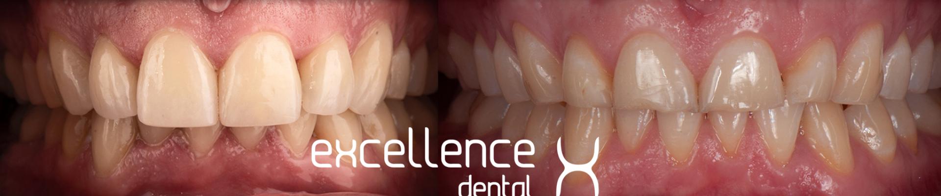 ¿Qué es el bruxismo y cómo puede afectar mi salud oral?