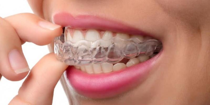 INVISALIGN - El novedoso tratamiento de ortodoncia invisible que no necesita brackets