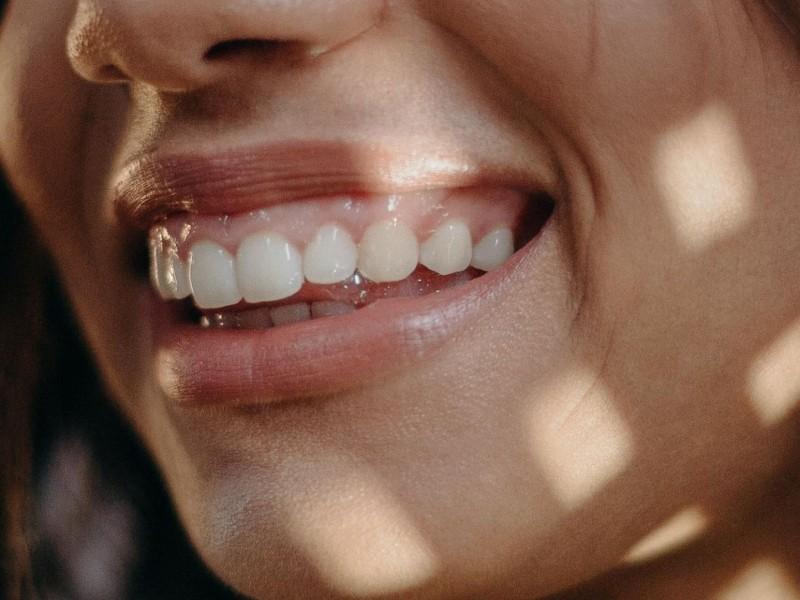 ¿Muestras mucha encía al sonreír? En Excellence Dental tenemos la solución para darle protagonismo a tus dientes.